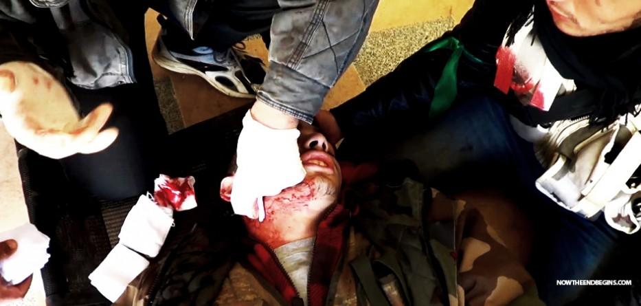 isis-spreading-leishmaniasis-disease-across-syria