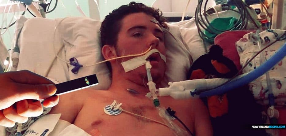 17-Year-Old Boy's Lungs Completely Blocked from Vaping, Doctors Say
