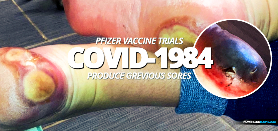 patricia-chandler-pfizer-bionmed-covid-1984-coronavirus-vaccine-trials-produces-grievous-sores-on-feet-fixed-drug-eruption